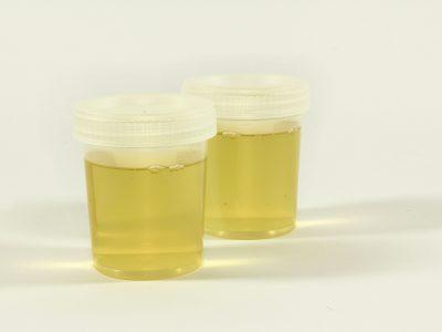 Urinanalyse